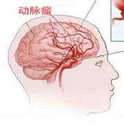 出国看病:脑动脉瘤治疗国外比较好的医院