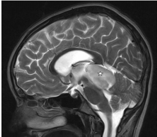 原发性神经节胶质瘤