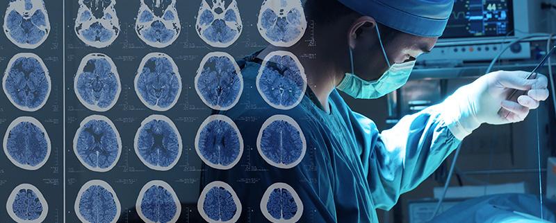 脑动脉瘤案例