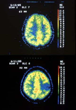 质子治疗星型细胞脑胶质瘤