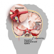 出国看病:脑动脉瘤破裂治疗方法有哪些?