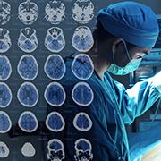 脑动静脉血管畸形日常要注意什么