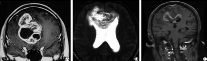 胶质瘤影像