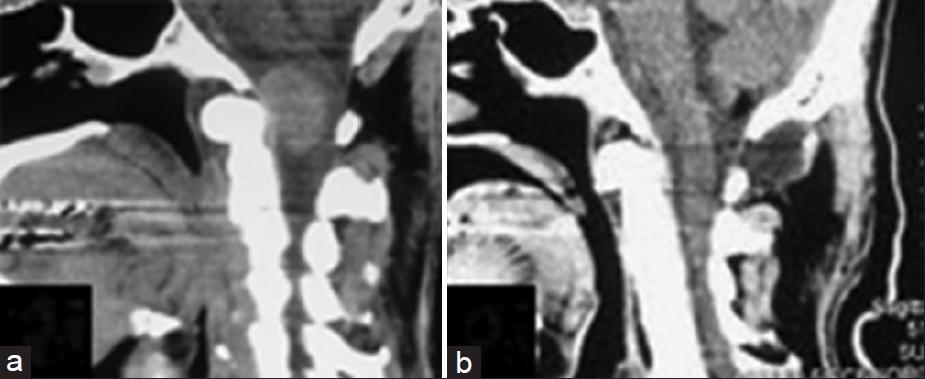 大孔脑膜脑膜瘤CT扫描