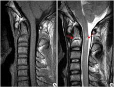 脊髓肿瘤一级复发了怎么办?
