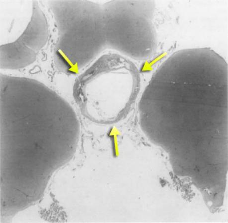 松果体区囊肿病理图
