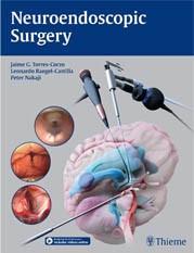 神经内镜手术