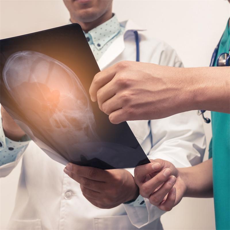 听神经瘤手术后会发生什么?康复需要多久?