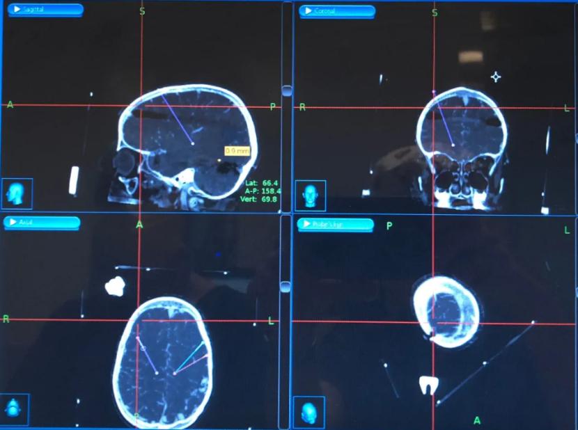 SickKids德雷赫大脑中DBS电极的位置