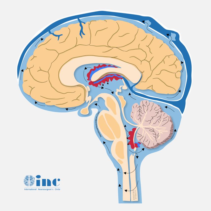 脑干胶质瘤