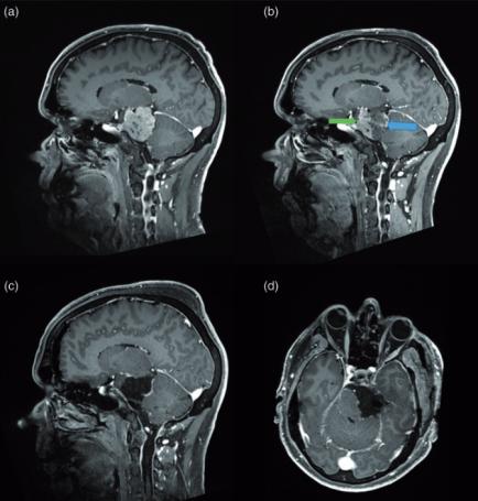 左侧巨大岩斜脑膜瘤