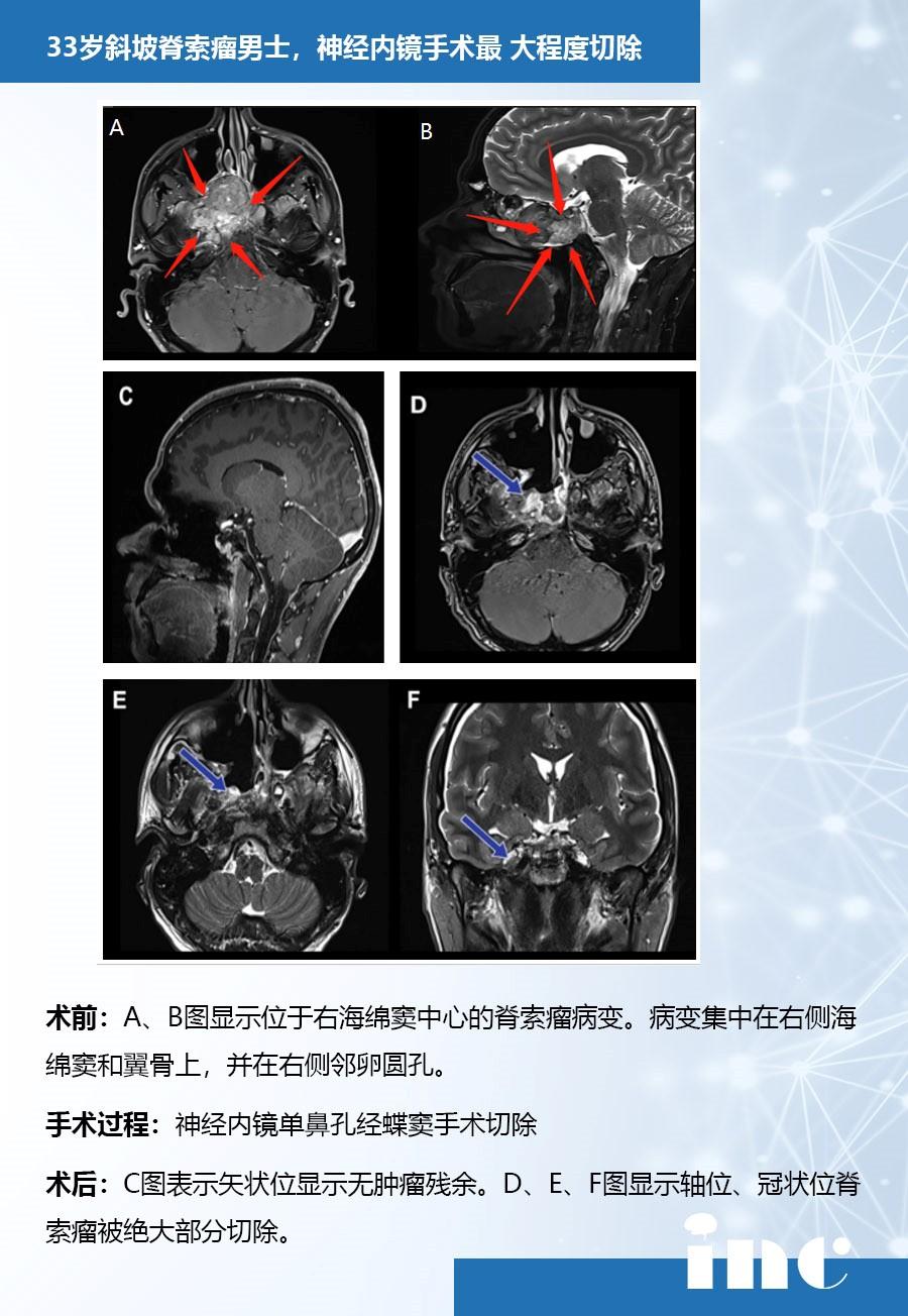 斜坡脊索瘤案例