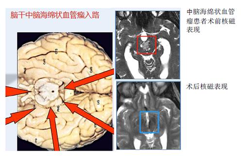 脑干血管瘤