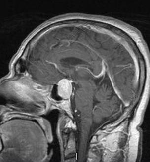 混合型垂体瘤