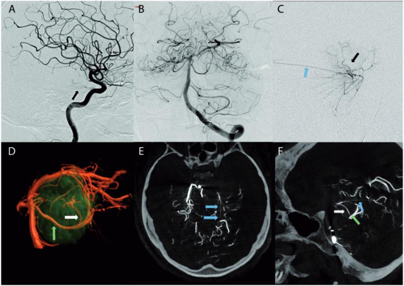 脑血管造影图