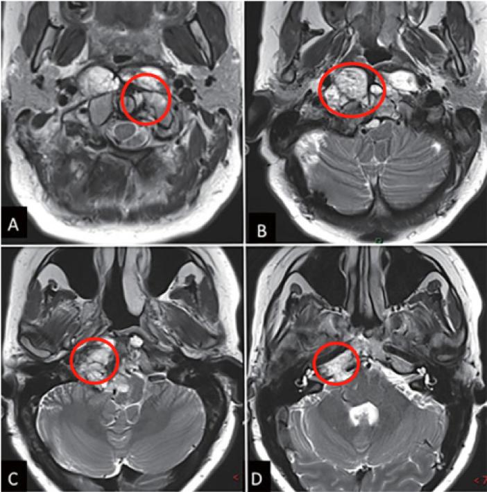 脊索瘤手术