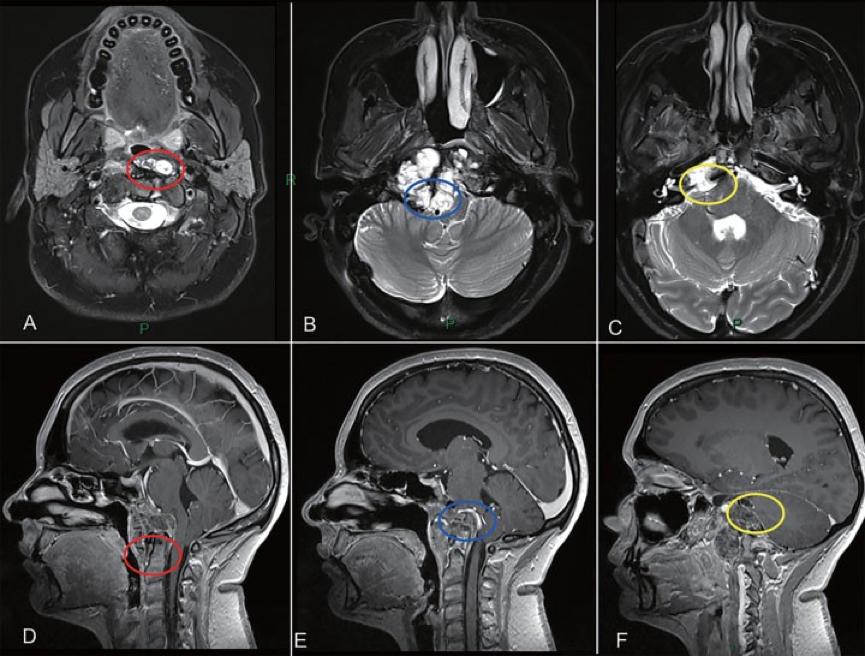 脊索瘤手术案例