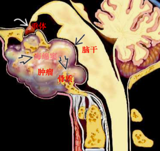 颅底脊索瘤