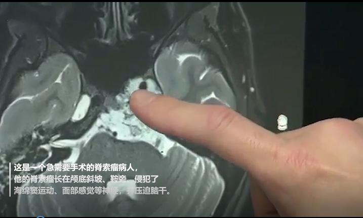 脊索瘤病人