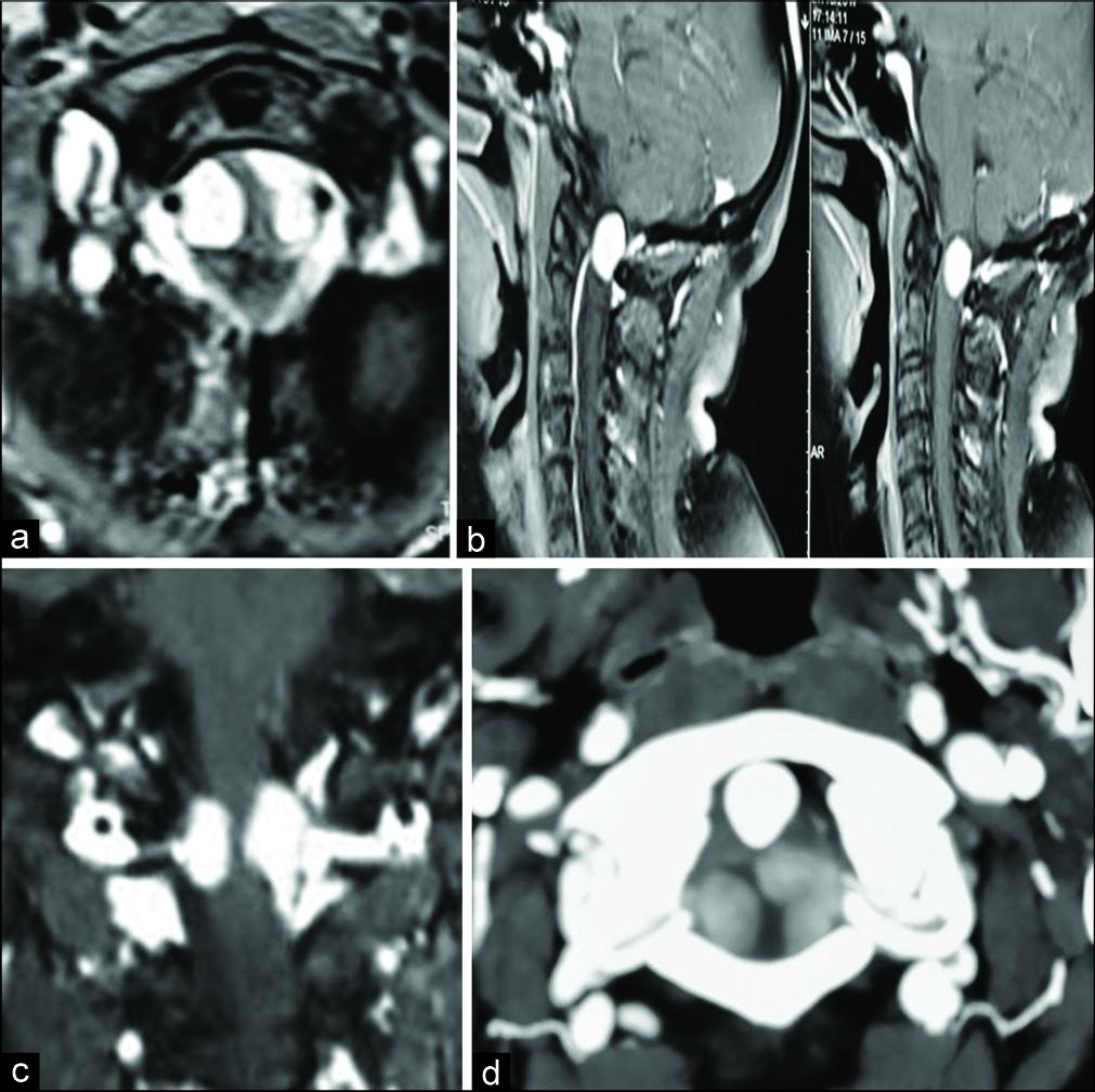 术前对比增强磁共振成像(MRI)