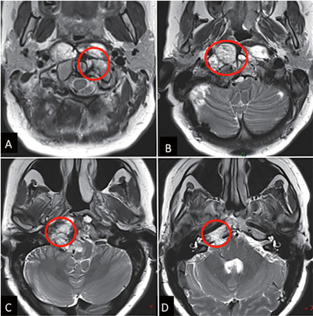 术前MRI影像图