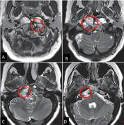 37岁脊索瘤两次再发病史,一次高切除手术终结复发噩梦