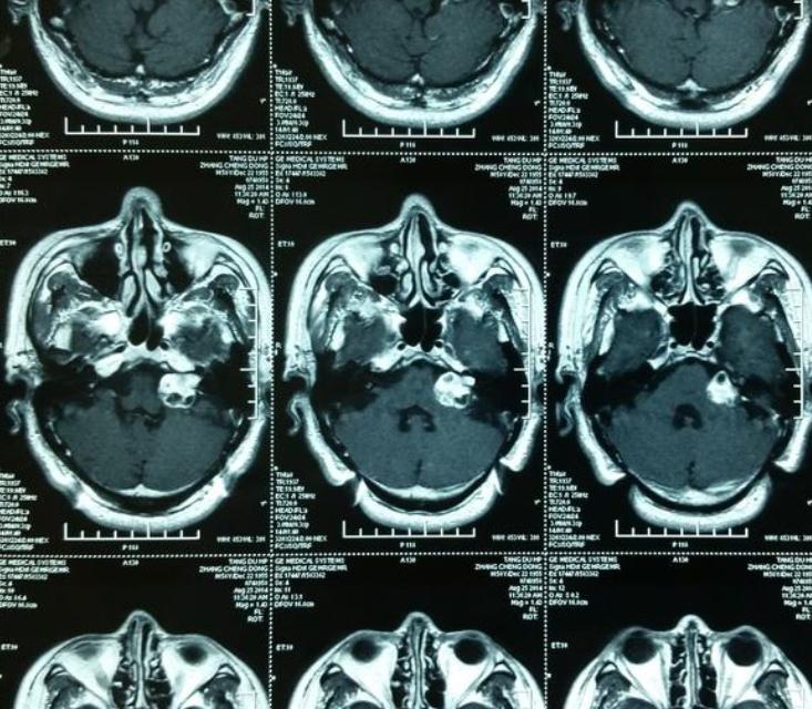 听神经瘤治疗