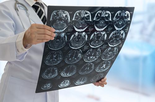 不孕不育警惕垂体瘤,难治性垂体瘤如何治疗?