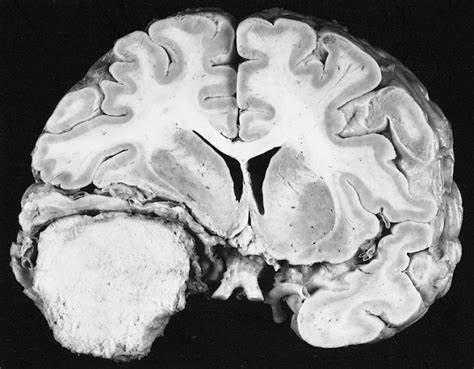 脑膜瘤复发