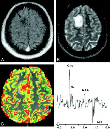 神经胶质瘤