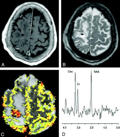 低级别神经胶质瘤
