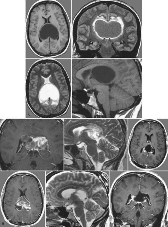 胶质瘤图片