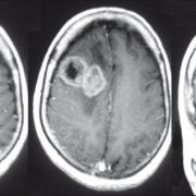 右额叶胶质瘤好手术吗?
