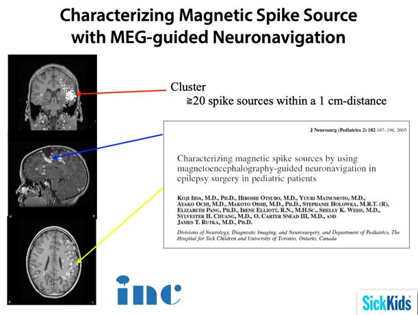 MEG脑磁图描记法的定位作用