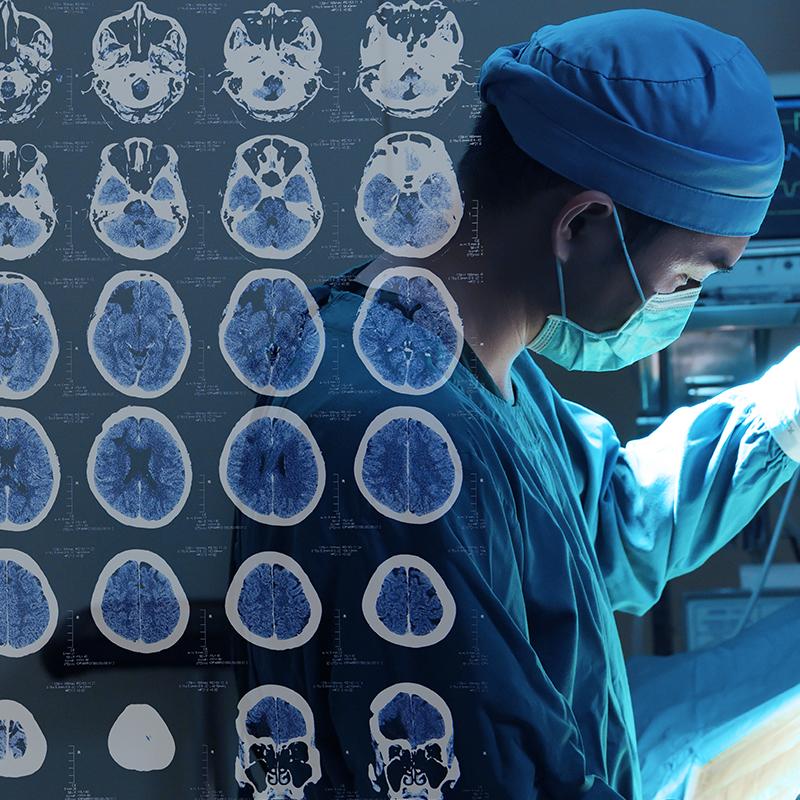 德国巴特朗菲教授中脑海绵状血管瘤的72例显微手