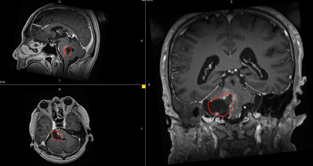 胶质瘤术后