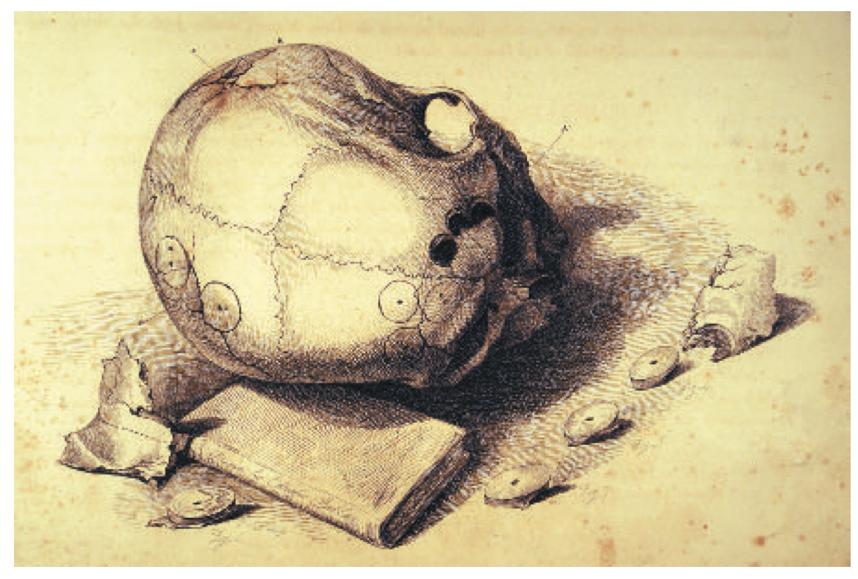 """早期关于头骨""""安全""""区域定义的插图"""