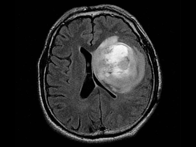 脑胶质瘤的治疗方法有哪些?