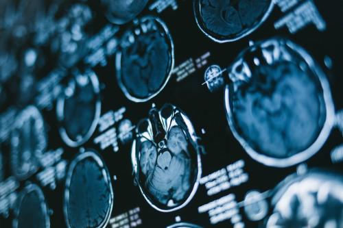 案例分享   INC国际教授神经内镜下全切颅咽管瘤两例