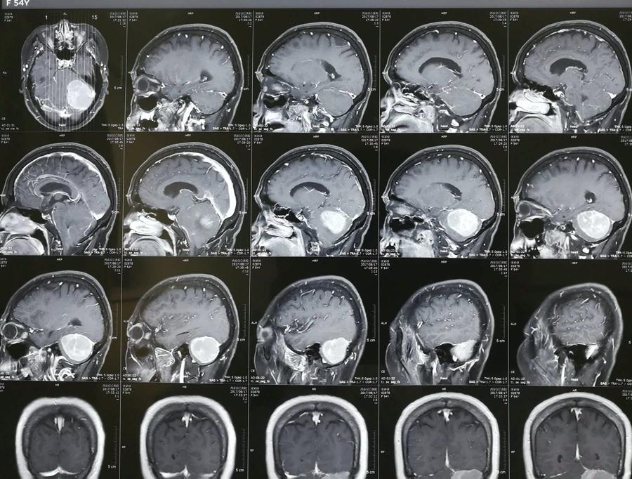 镰旁脑膜瘤是重大病吗?手术难度大吗?