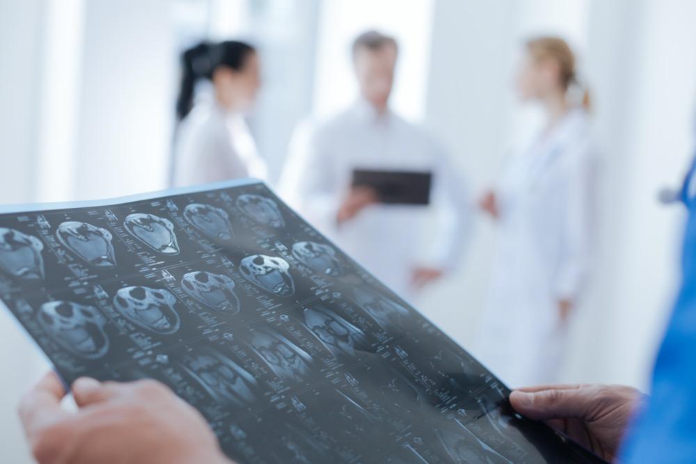 什么是胶质瘤