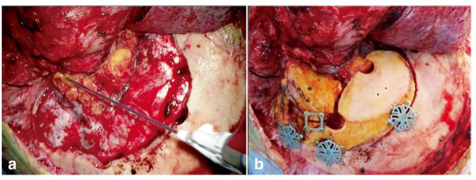 脑膜瘤案例