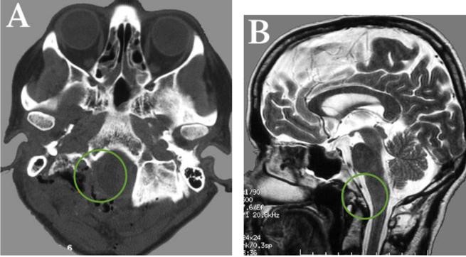 脑膜瘤治疗