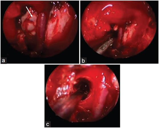 脑海绵状血管瘤案例