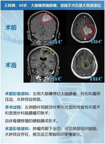 脑膜瘤案例-巴特朗菲