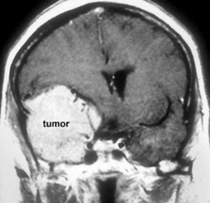 脑膜瘤5cm是几级?还有希望治好吗?
