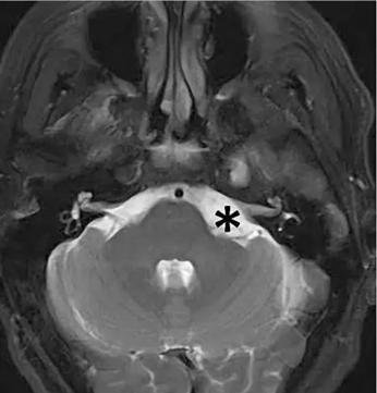 左侧桥小脑角区脑膜瘤复杂吗?81岁老人全切术后4天出院