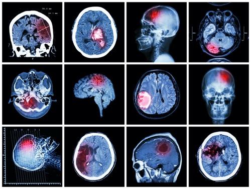<b>脑膜瘤好发部位有哪些?术前术后护理注意什么?</b>