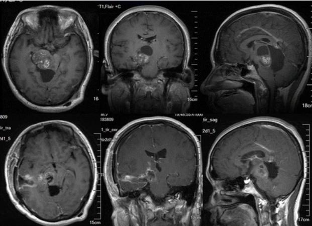 最难手术之一的丘脑胶质瘤,手术后生存期有多