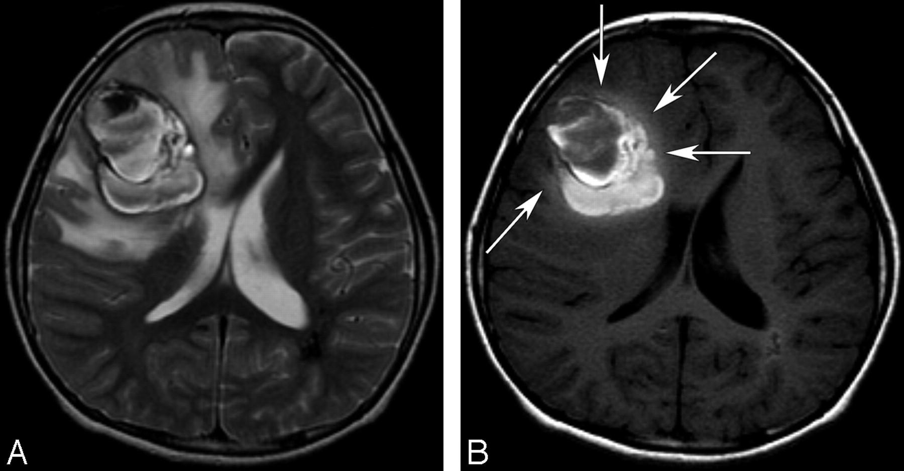 脑海绵状血管瘤